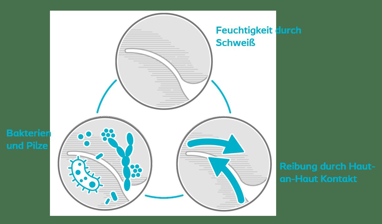 intertrigo-pflege-und-wundberatung-beyerlein